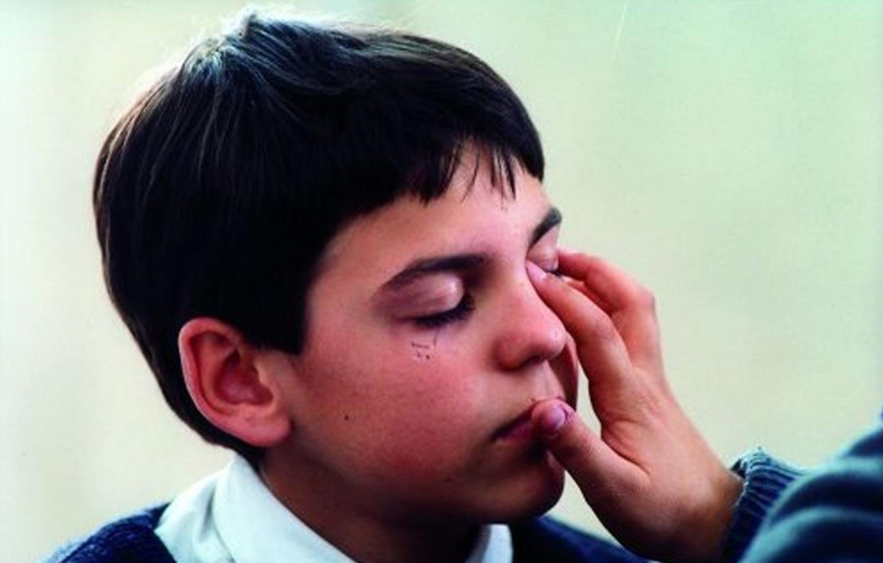Mirco heeft zijn ogen gesloten. Onder zijn rechteroog is een litteken zichtbaar. Op zijn linkeroog rust de hand van iemand anders, het is niet duidelijk van wie.